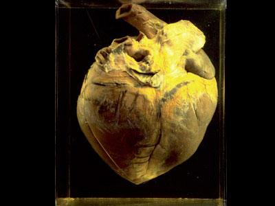 pharlap-heart
